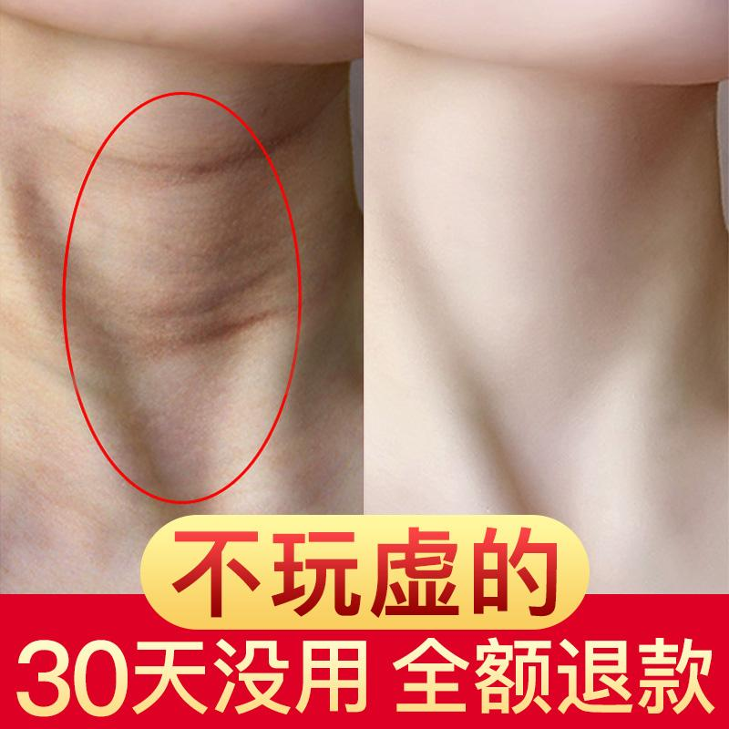 [exposure For Ages Dont Just Face Words】 Q2 Cream Caring For Neck ~ Neck With Nemesis ~ Let You Possesses Swan To Neck With Cream By Taobao Collection.