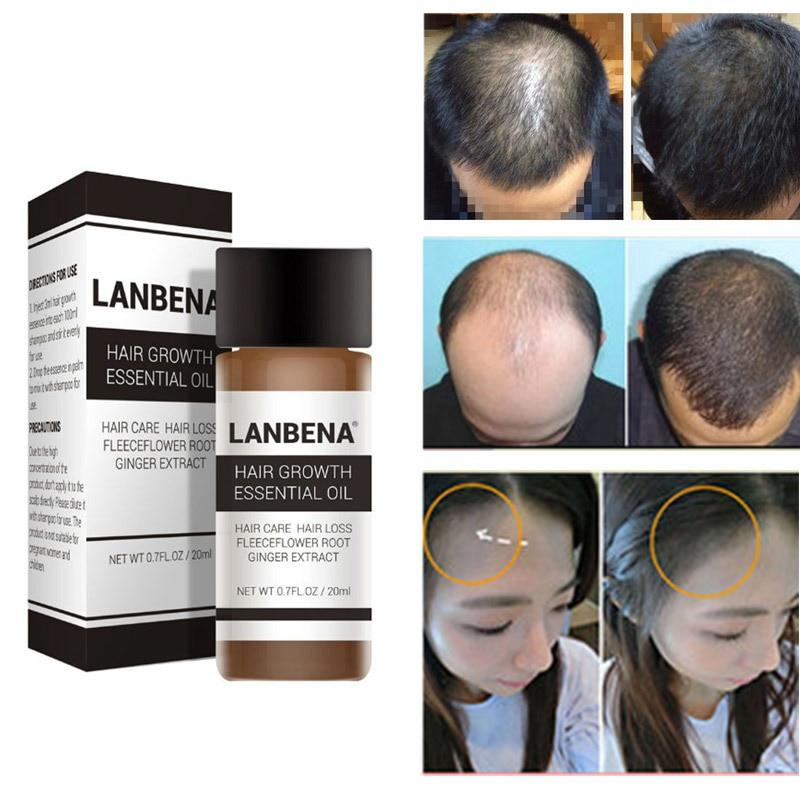 Lanbena 20ml Hair Growth Essence Fast Powerful Hair Care Essential Oil Liquid Treatment Preventing Hair Loss Products For Men And Women By Initial Avenue.