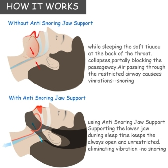Sunweb ACEVIVI Nylon Snore Stopping Chin Strap Soft Sleep Anti Snore Strap - intl - 4